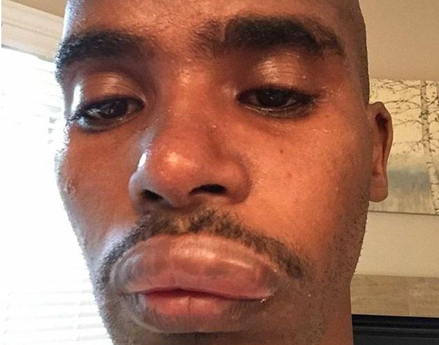 Mo Farah Swollen Lip
